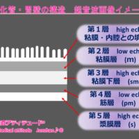 消化管・胃壁の構造 超音波画像イメージ