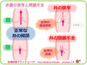 弁膜の狭窄と閉鎖不全