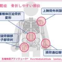 骨粗鬆症 骨折しやすい部位