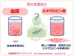 尿の色調成分