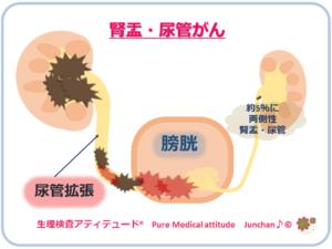 腎盂・尿管がん