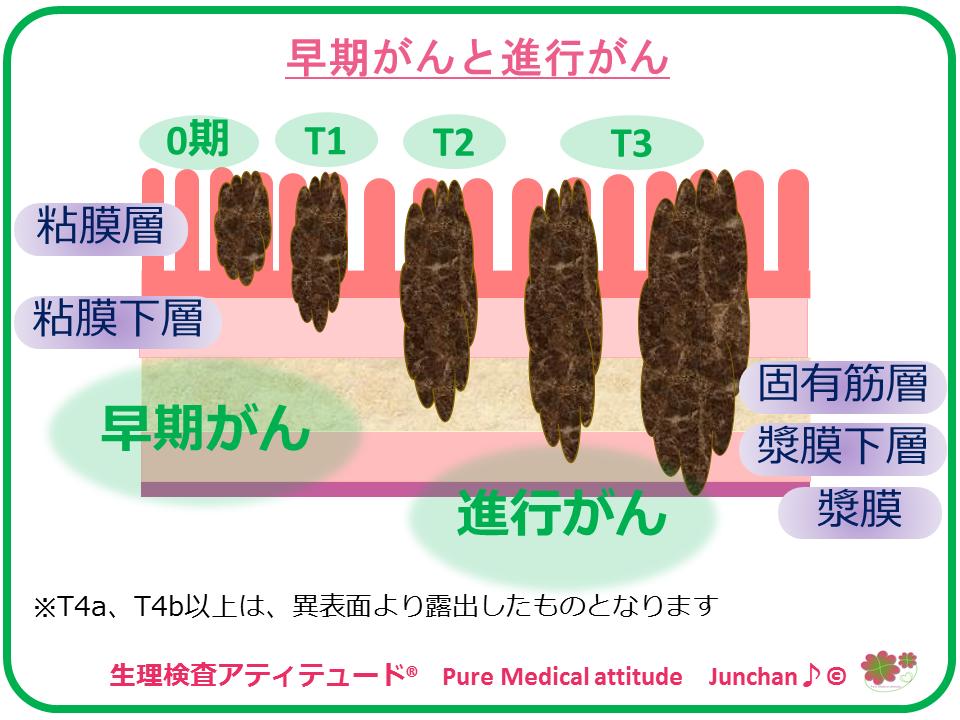 初期 症状 ブログ スキルス 胃がん