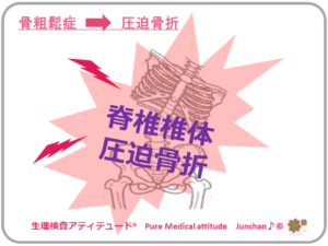 骨粗鬆症 脊椎椎体圧迫骨折