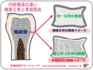 内部構造の違い 健康な骨と骨粗鬆症