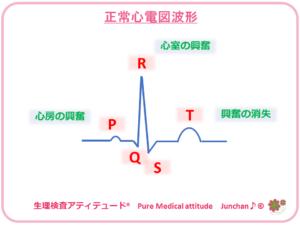 正常ECG