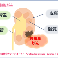 腎細胞がん