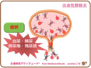 出血性膀胱炎