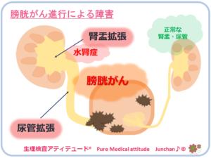 膀胱がん進行による障害