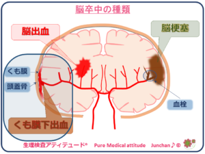 脳卒中の種類 くも膜下出血