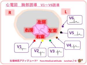 心電図 胸部誘導 V1~V6誘導