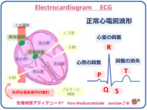 心電図波形 ECG