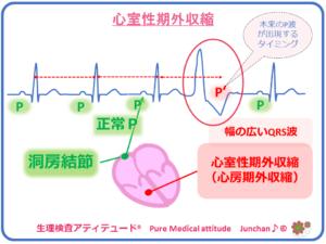 心室性期外収縮