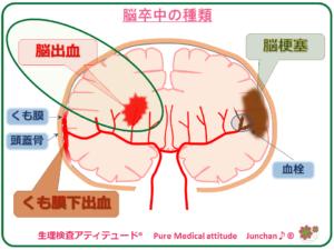 脳卒中の種類