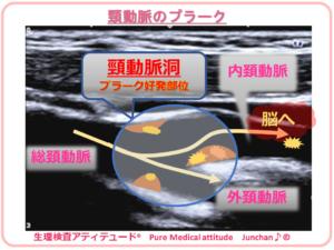 頸動脈 プラーク
