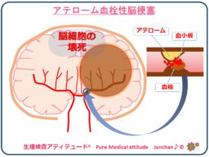 アテローム血栓性脳梗塞