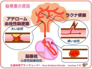 脳梗塞の原因