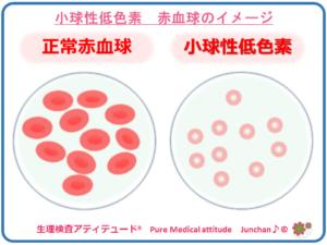 小球性低色素 赤血球のイメージ