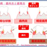 歯周病:歯肉炎と歯周炎