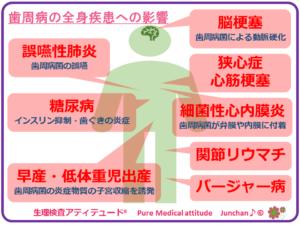 歯周病の全身疾患への影響