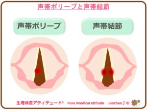声帯ポリープと声帯結節