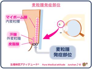 麦粒腫発症部位