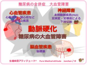 糖尿病の合併症 大血管障害