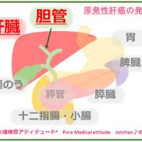 原発性肝癌の発症
