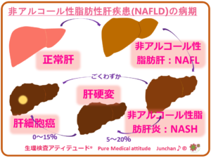 非アルコール性脂肪性肝疾患(NAFLD)の病期