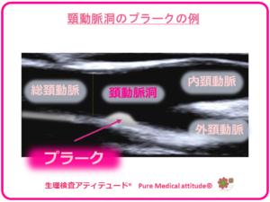 頸動脈洞のプラークの例