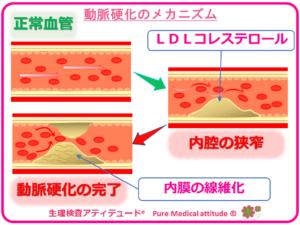 動脈硬化のメカニズム