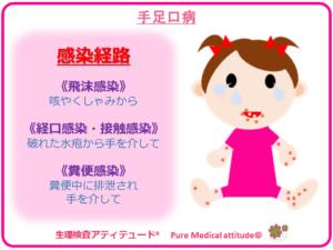 手足口病 感染経路
