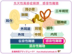 先天性風疹症候群 感音性難聴