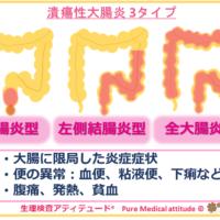 潰瘍性大腸炎 3タイプ