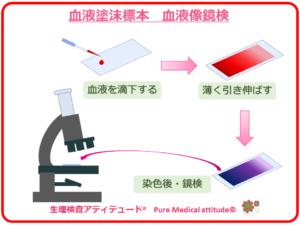 血液塗沫標本 鏡検