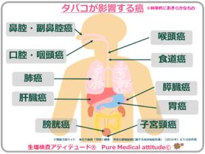 タバコが影響する癌