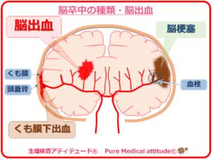 脳卒中の種類 脳出血