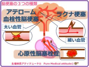 脳梗塞の3つの種類