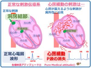 正常の刺激伝導系と心房細動の刺激の違い