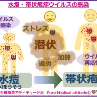 水痘・帯状疱疹ウイルスの感染